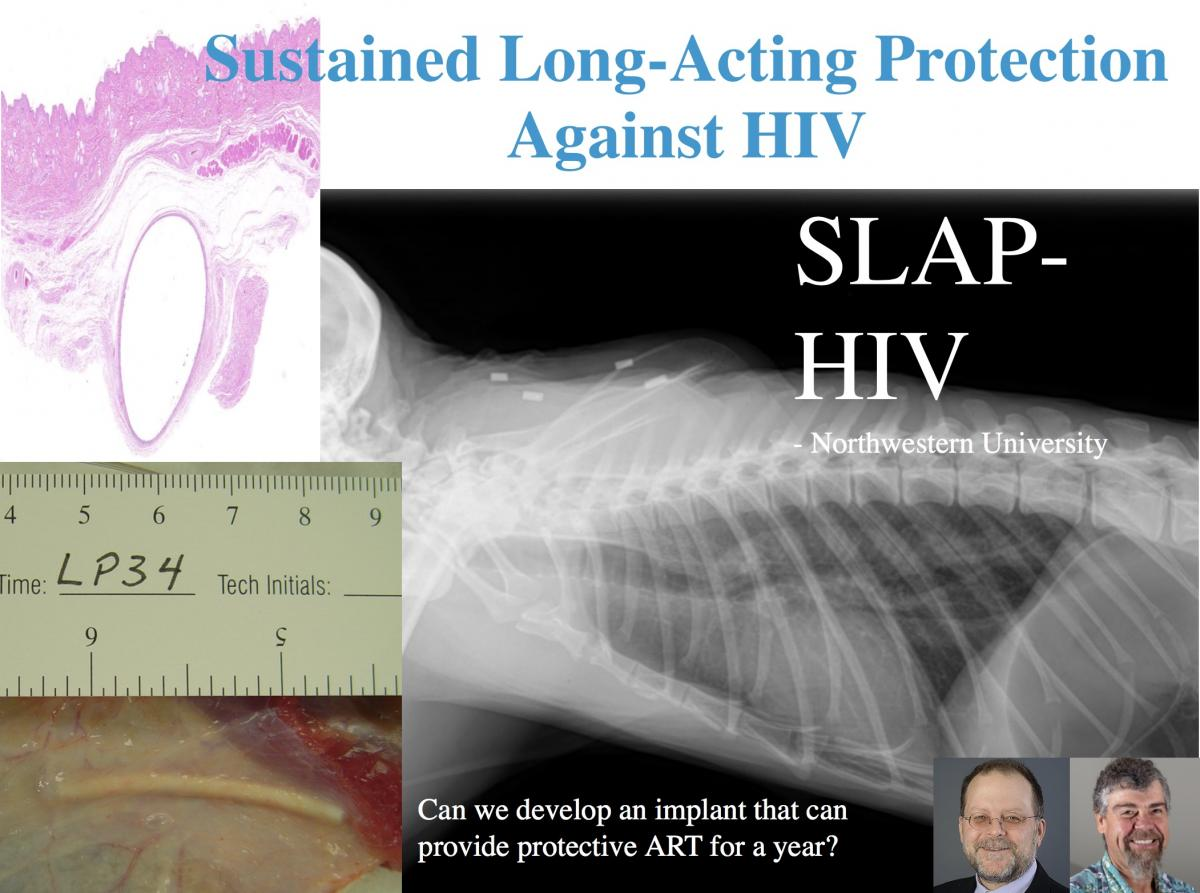 L'implant Slap HIV en développement