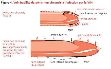 penetrarion penetration infection